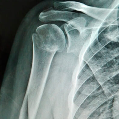 Orthopedic Traumatologist specialist in shoulder injuries in Guadalajara, Mexico