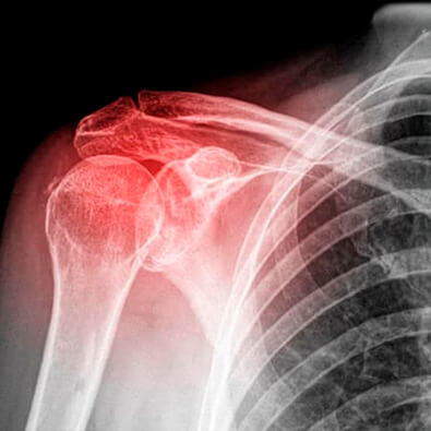 Orthopedic Traumatologist specialist in shoulder serious injuries in Guadalajara, Mexico
